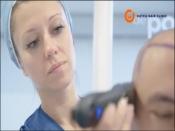 Haartransplantatie bij Dutch Clinic