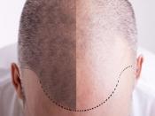 Haartransplantatie in Hoofddorp