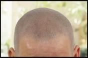 Scalp pigmentatie behandeling